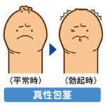 上野クリニックの真性包茎の治療費はいくら?料金表を見ただけでは分らない情報をお伝えいたします!