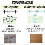 上野クリニックの吸収糸について徹底解説!!包茎クリニックは吸収糸?ナイロン糸?どちらを選ぶべきなのか全てをお伝えします!